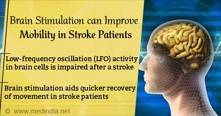 Brain Stimulation can Improve Mobility in Stroke Patients