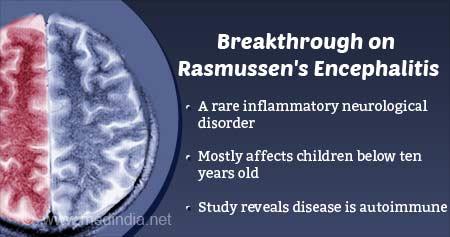 Autoimmune Disease: Rasmussen''s Encephalitis