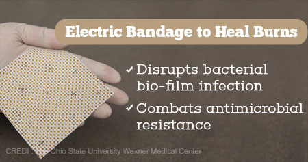 Health Tip on Electric Bandages to Heal Burns