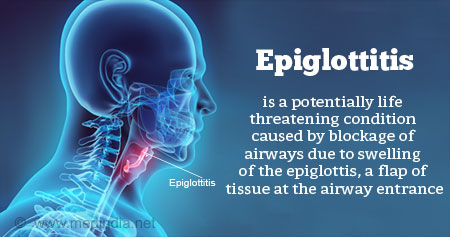 Health Tip on Epiglottitis