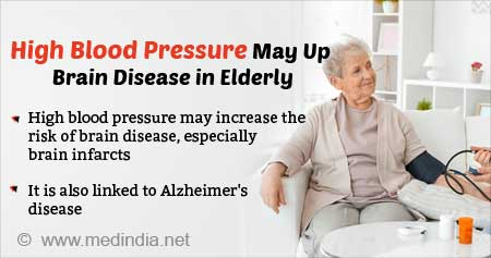 High Blood Pressure in Later Life May Link to Alzheimer's Disease