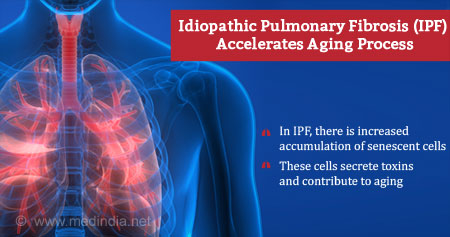 Health Tip on Acceleration of Aging Process