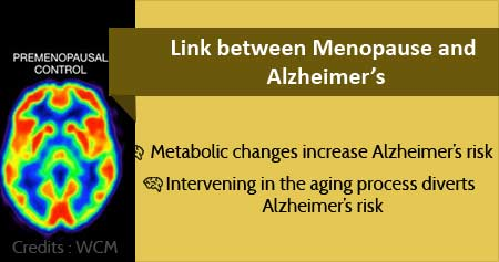 Health Tip on Alzheimer''s Risk in Menopausal Women