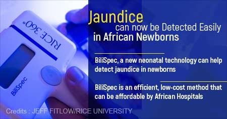 Health Tip on Low-cost Method to Detect Jaundice in African Newborns