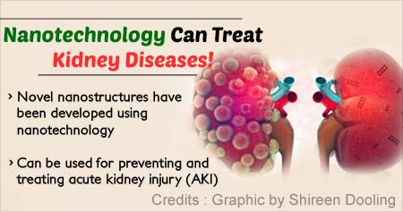Nanotechnology Helps Treat Acute Kidney Injury
