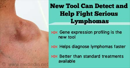 New Tool Can Help Fight Lymphoma - Here's How