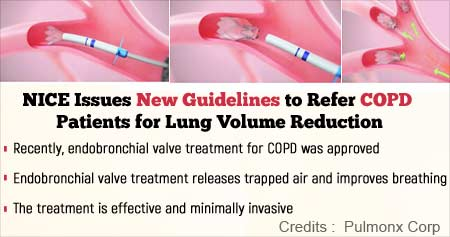 New COPD Management Guidelines from National Institute for Health and Care Excellence (NICE)