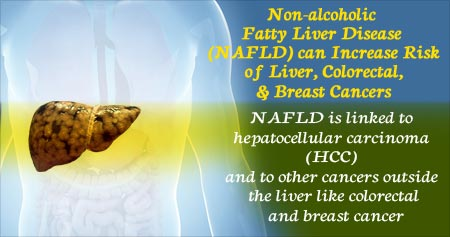Health Tip on Nonalcoholic Fatty Liver Disease Increases Cancer Risk
