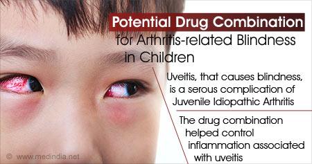 Novel Drug for Arthritis-related Blindness in Children
