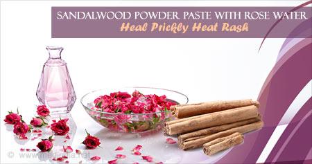 Useful Health Tip to Get Rid of Prickly Heat Rash