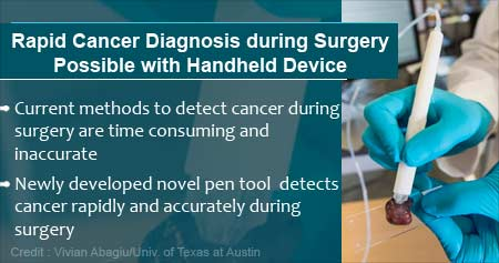 Novel Tool To Identify Cancerous Tissue During Surgery Developed