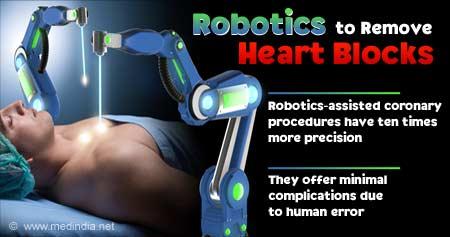 Health Tip on Robotics To Remove Heart Blocks