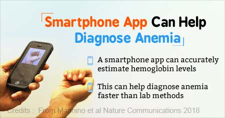 Smartphone App Capable of Accurately Diagnosing Anemia