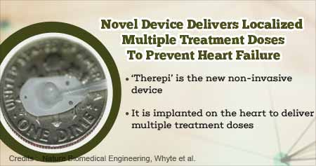 New Device Implanted on Heart Prevents Heart Failure