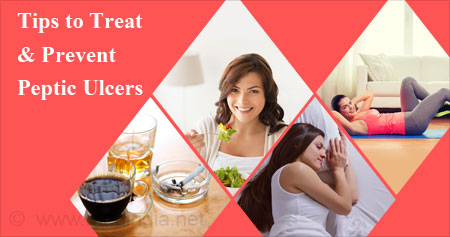 Health Tip to Treat and Prevent Peptic Ulcers