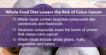 Health Tip on Whole Foods to Lower Risk of Colon Cancer