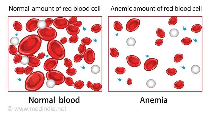 Causes of Vertigo: Anemia