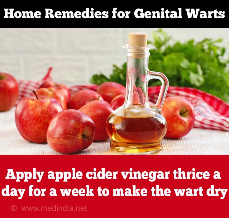 Apple Cider Vinegar for Genital Warts
