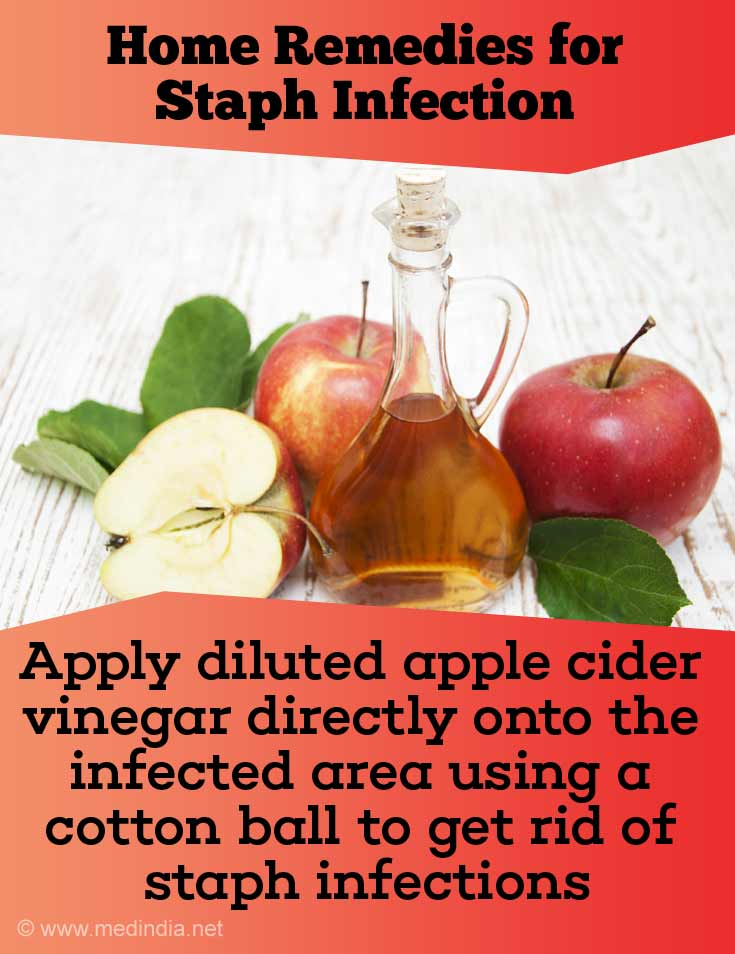 Apple Cider Vinegar can Heal Staph Infection