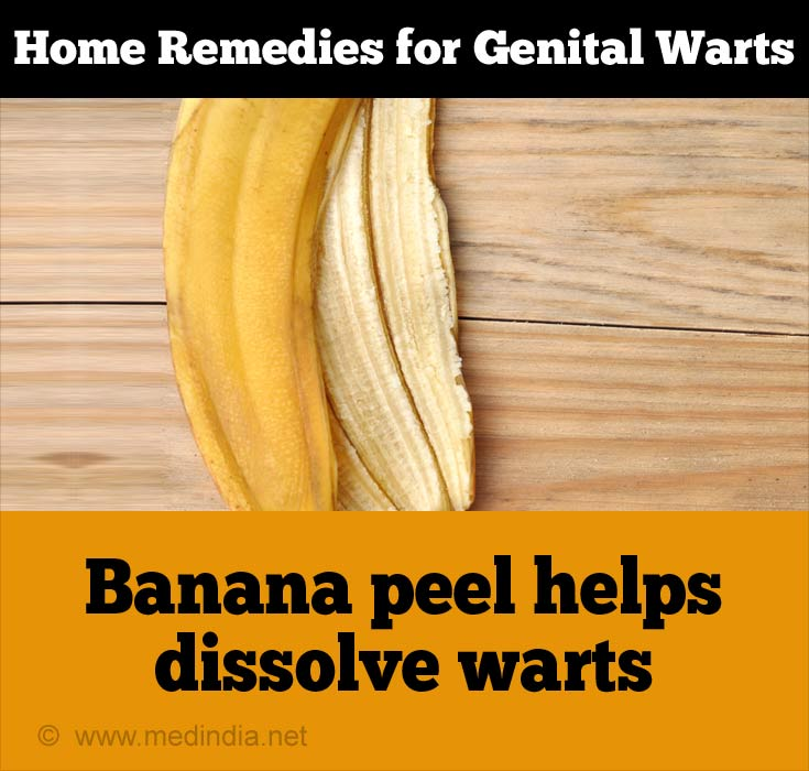Banana Peel for Genital Warts