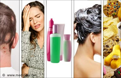 Causes of an Itchy Scalp