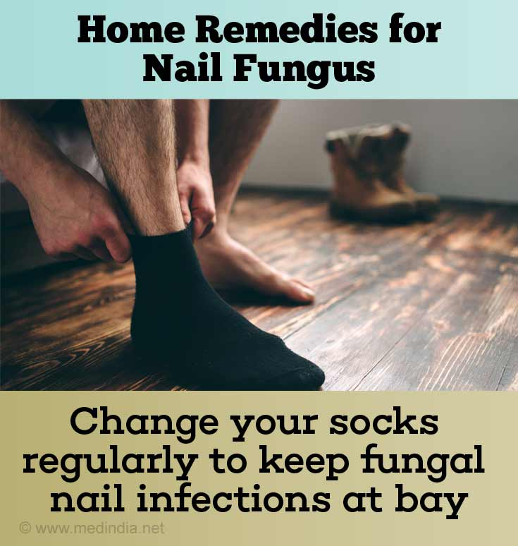 Change Your Socks Regularly to Prevent Fungal Nail Infection