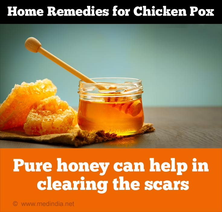 Home Remedies for Chicken Pox: Pure Honey