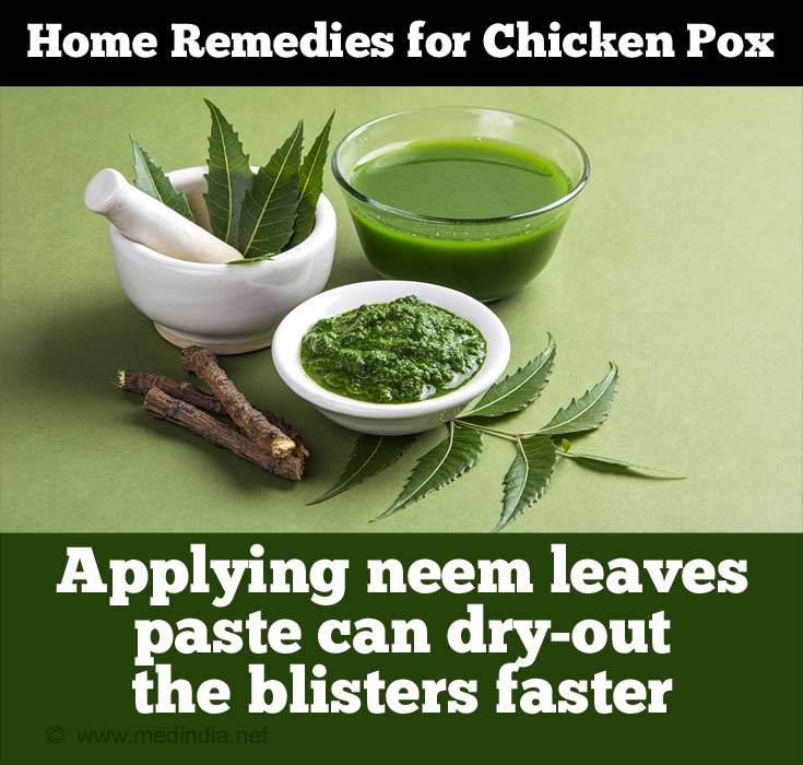 Neem Leaves Help Dry-out Blisters Faster