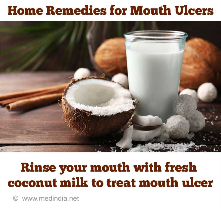 Home Remedy Tips to Treat Mouth Ulcers