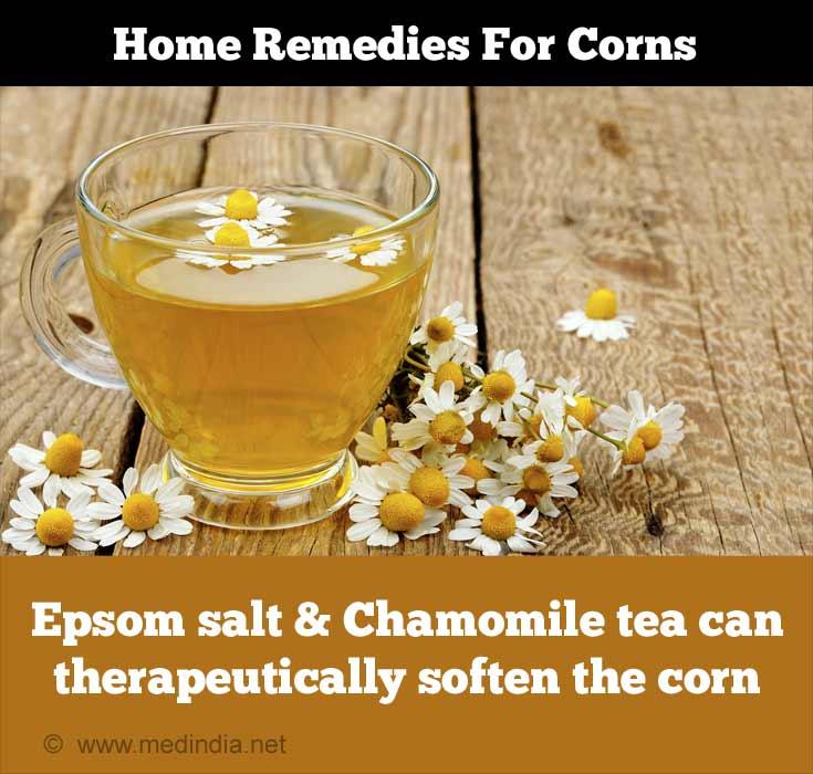 Home Remedies for Corns: Chamomile Tea
