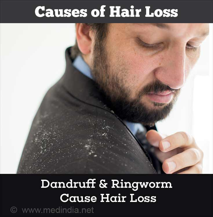 Causes of Hair Loss: Dandruff