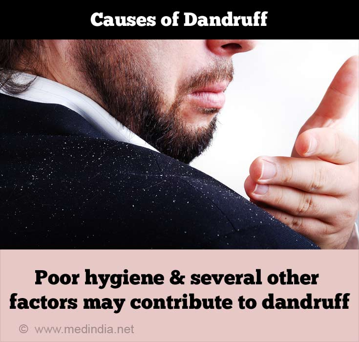 Causes of Dandruff: Dry Scalp
