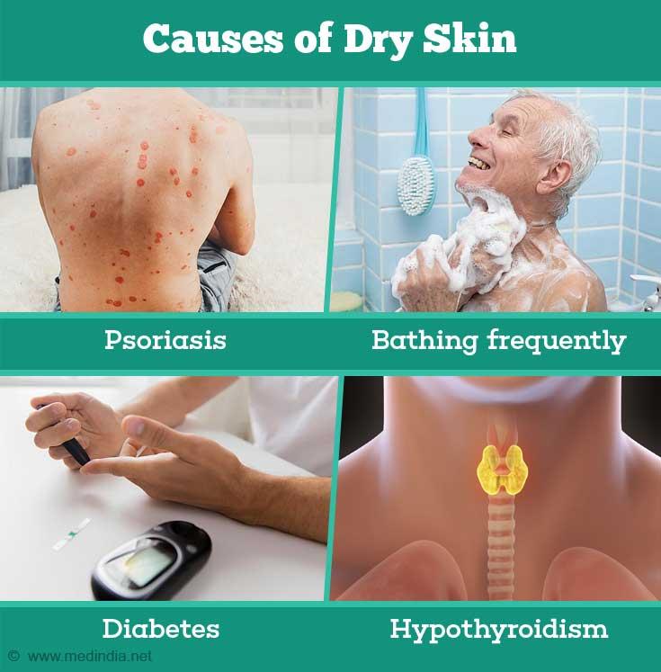 Causes of Dry Skin: Psoriasis