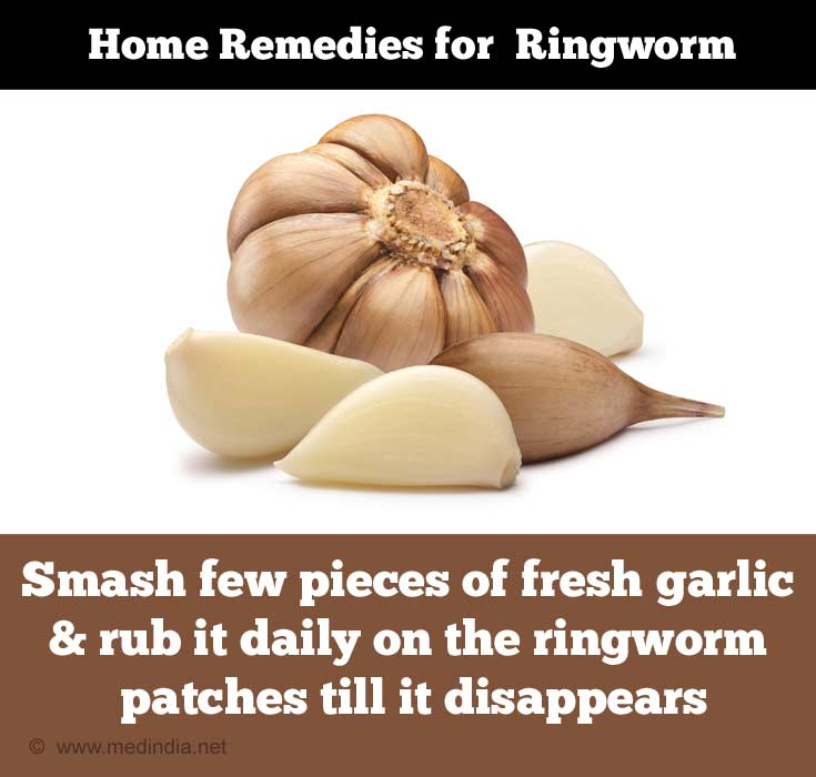 Home Remedies for Ringworm: Garlic
