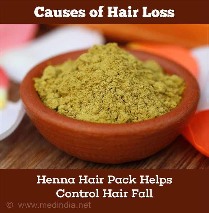 Home Remedies for Hair Loss: Henna Paste