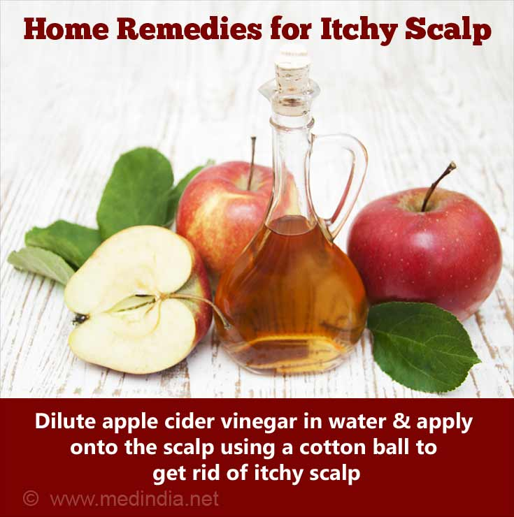 Home Remedies for an Itchy Scalp: Apple Cidel Vinegar