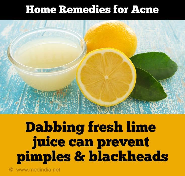 Lime Juice Prevents Acne