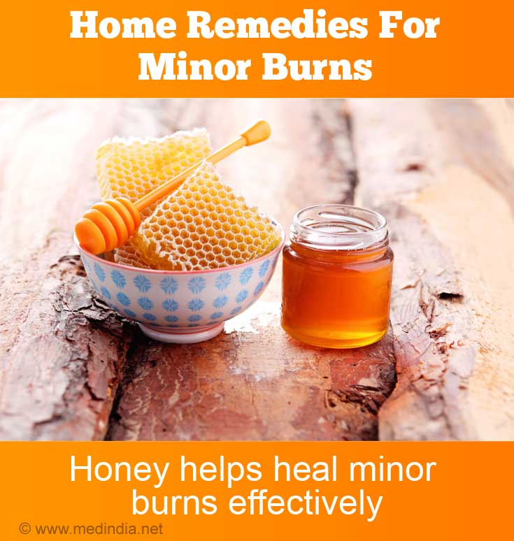 Honey helps Heal Minor Burns Effectively