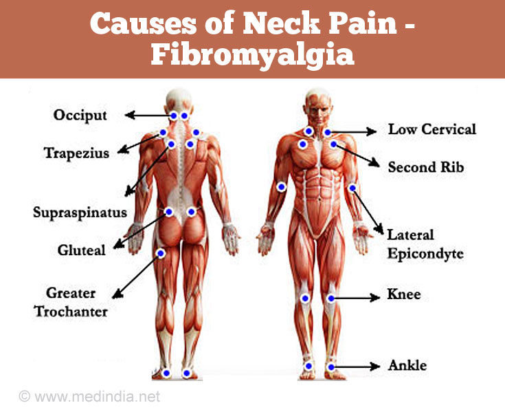 Causes of Neck Pain: Fibromyalgia