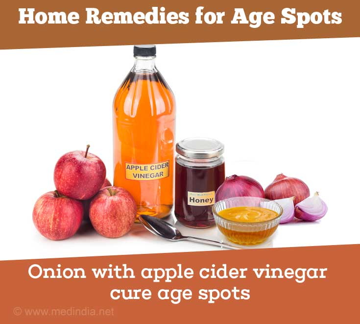 Onion With Apple Cider Vinegar Reduce Age Spots
