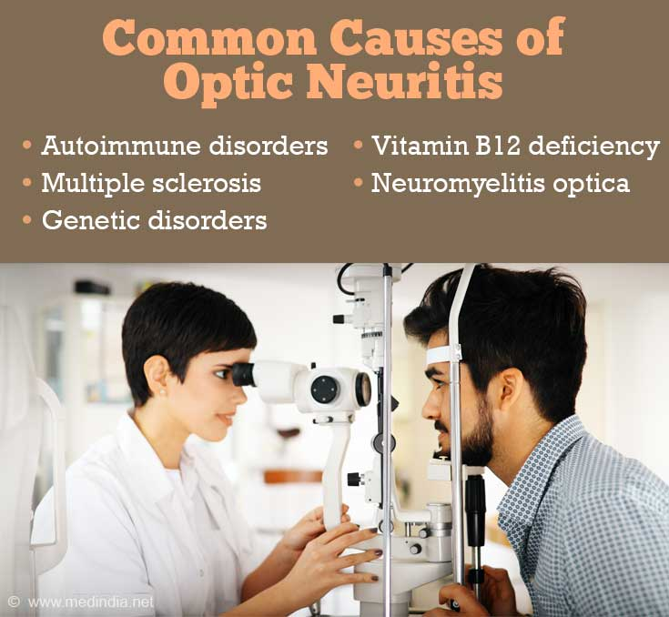 Common Causes of Optic Neuritis: Autoimmune Disorders