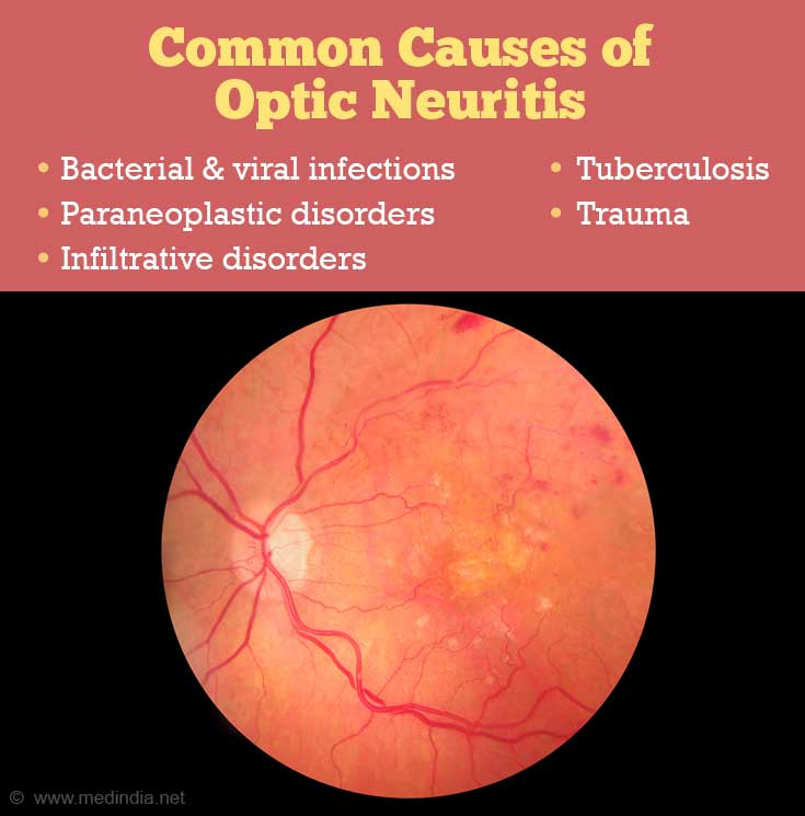 Common Causes of Optic Neuritis: Tuberculosis