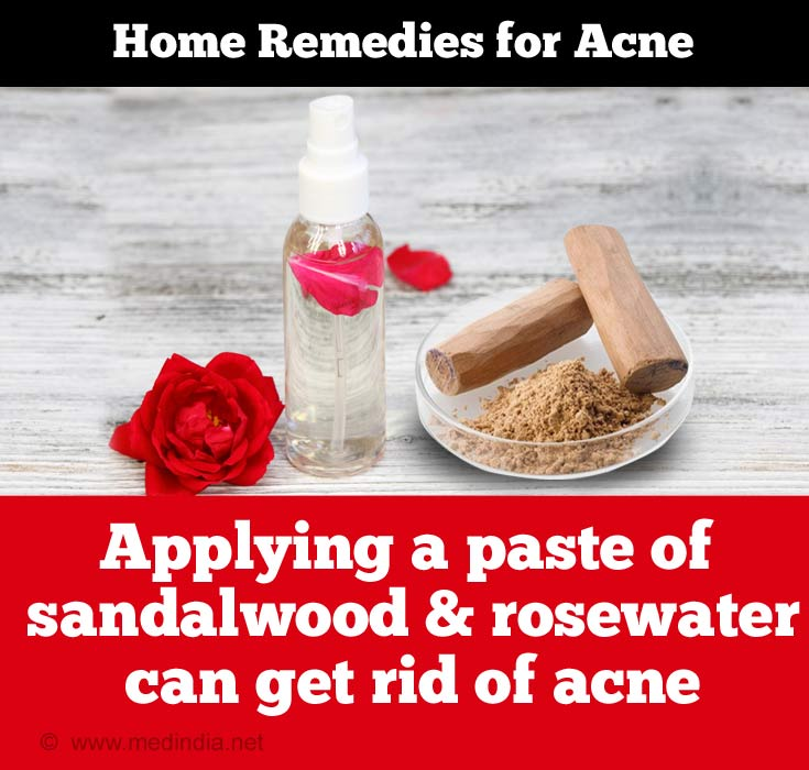 Sandalwood & Rosewater can Get Rid of Acne