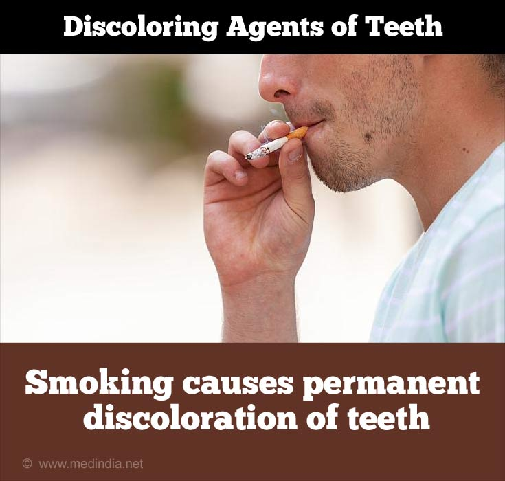 Discoloring Agents of Teeth: Smoking