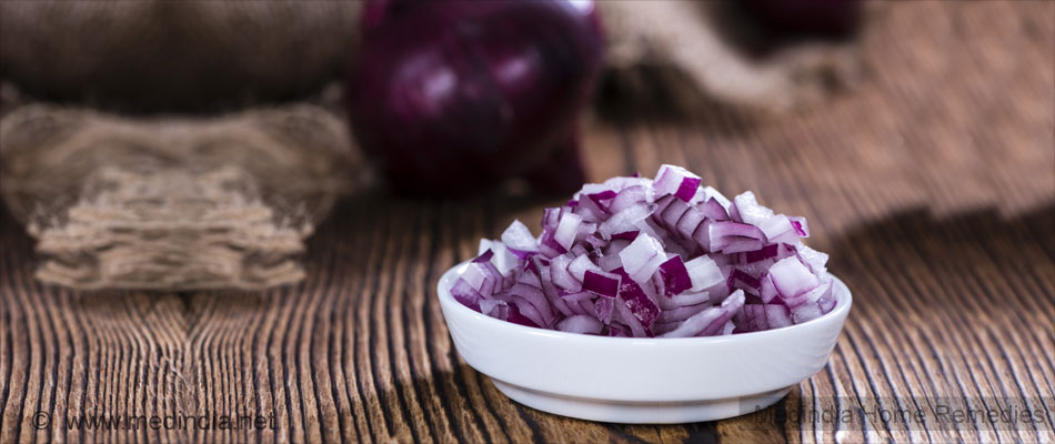 Home Remedies for Sprains: Onions