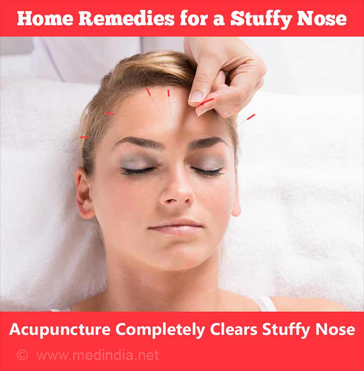 Acupuncture Completely Clears Stuffy Nose