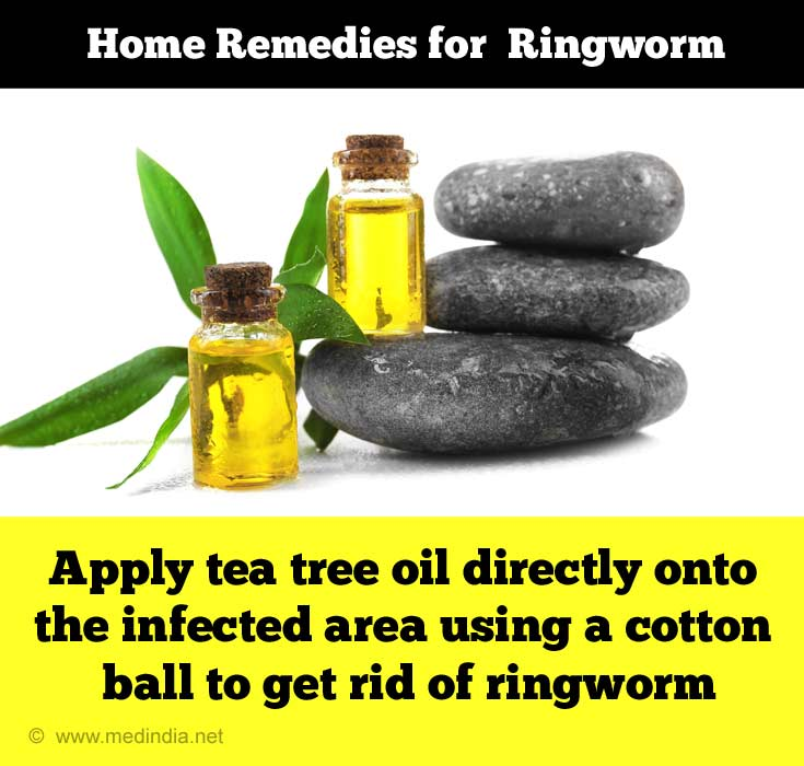 Home Remedies for Ringworm: Tea Tree Oil