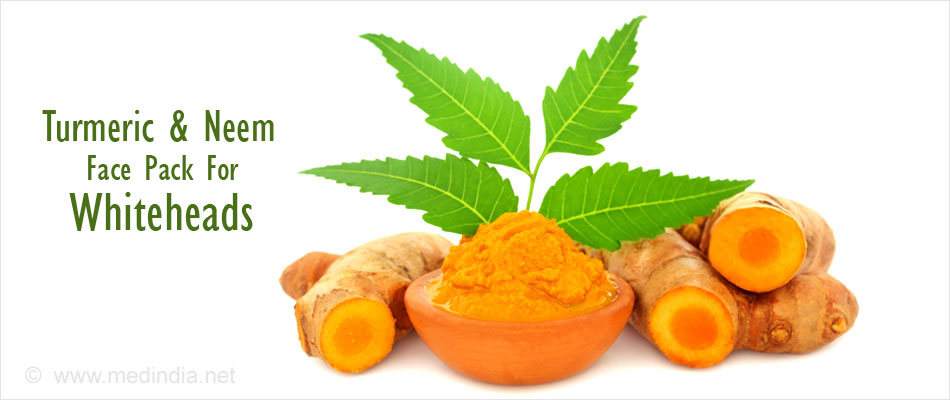 Turmeric and Neem Face Pack For Whiteheads