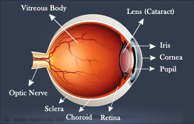 Types of Vision Problems: Cataract