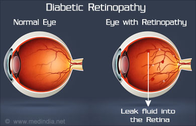 Causes of Eye Disorders: Diabetic Retinopathy